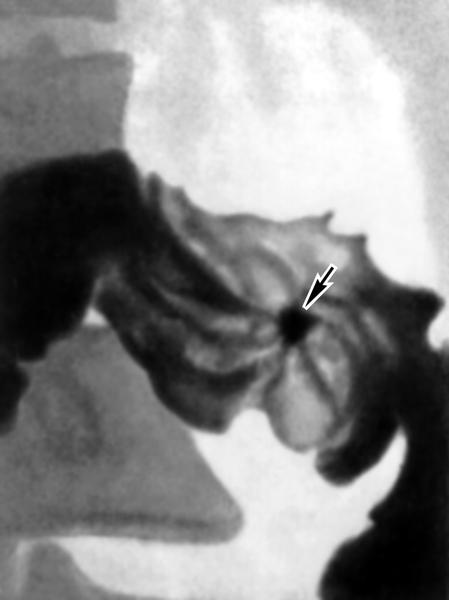 Рис. 1б). Прицельные рентгенограммы (в разных проекциях) луковицы двенадцатиперстной кишки при язвенной болезни: ниша рельефа, или фасная ниша (указана стрелкой), с конвергенцией к ней складок слизистой оболочки