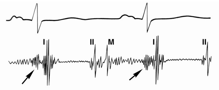 Рис. 7. Фонокардиограмма при митральном стенозе (обозначение тонов как на рис. 2, 6): видны увеличение амплитуды и частоты I тона сердца («хлопающий» I тон), тон открытия митрального клапана (М) и предшествующий I тону пресистолический шум (указан стрелками)