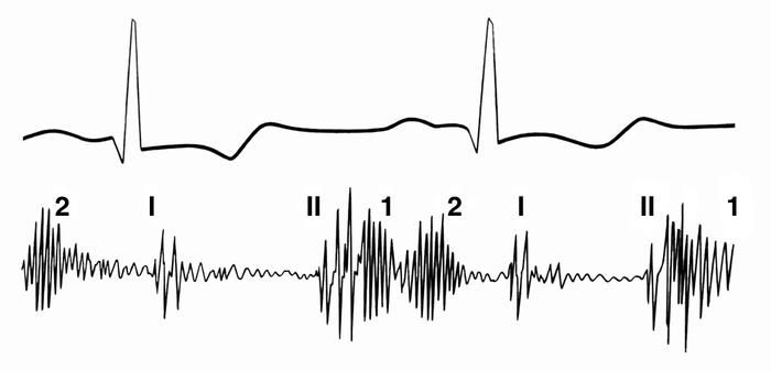 Рис. 6. Фонокардиограмма при аортальной недостаточности (обозначение тонов как на рис. 2): 1 — протодиастолический шум, примыкающий к II тону, 2 — мезодиастолический шум (регистрируется примерно в середине интервала между II и I тонами)