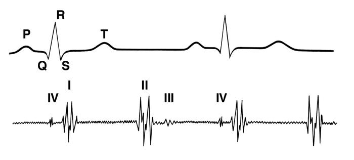 Рис. 2. Расположение тонов сердца на фонокардиограмме (внизу), зарегистрированной (как и на рисунках 3—7) синхронно с электрокардиограммой (вверху): цифрами I, II, III, IV обозначены соответственно первый, второй, третий и четвертый <a href=