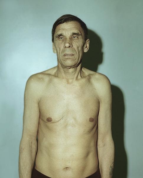 дистрофия кожи фото