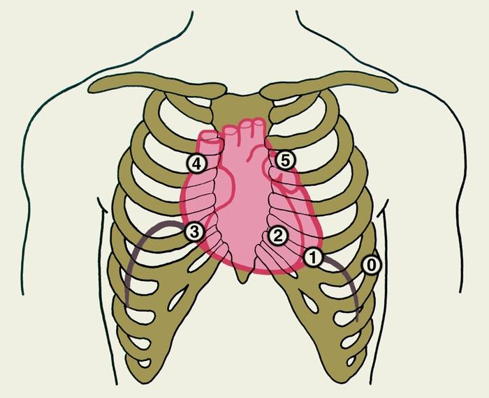 Рис. 1. Схема расположения на грудной клетке точек установки микрофона для записи фонокардиограммы: 0 — «нулевая» точка (V межреберье по передней аксиллярной линии слева), 1 — точка, соответствующая примерно верхушке сердца (V межреберье по левой среднеключичной линии), 2 — точка проекции митрального клапана (IV межреберье у левого края грудины), 3 — точка проекции трехстворчатого клапана (IV межреберье у правого края грудины), 4 — точка проекции аортального клапана (II межреберье справа от грудины), 5 — точка проекции клапана легочного ствола (II межреберье слева от грудины)