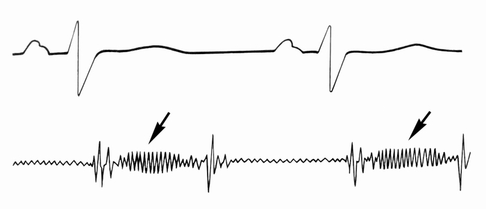 Рис. 5. Фонокардиограмма при органической недостаточности трехстворчатого клапана: низкоамплитудный лентовидный систолический шум (указан стрелками)