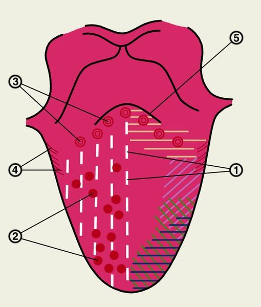 Рис. 1. Схематическое изображение сосочков языка и зон восприятия вкусовых раздражителей на его верхней поверхности: 1 — нитевидные сосочки; 2 — грибовидные сосочки; 3 — желобоватые сосочки; 4 — <a href=
