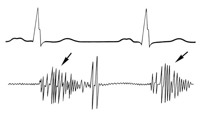 Рис. 3. Фонокардиограмма при органической митральной недостаточности: I тон ослаблен, сливается с убывающим систолическим шумом (указан стрелками)