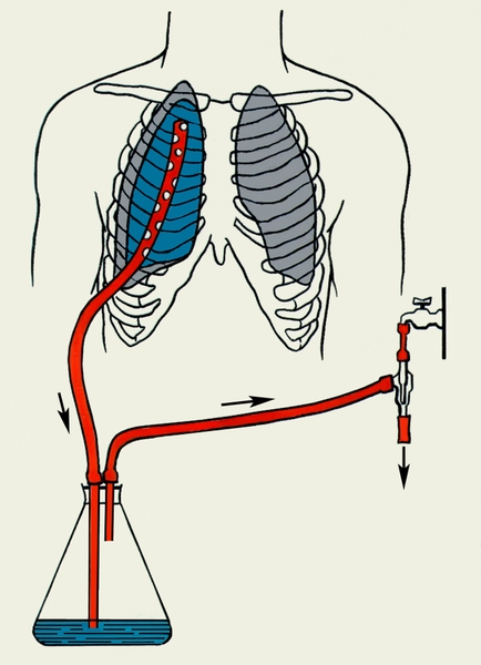 Рис. 4. Схема дозированного вакуумного дренирования плевральной полости с помощью водоструйного насоса (стрелками указано направление тока жидкости и воздуха)