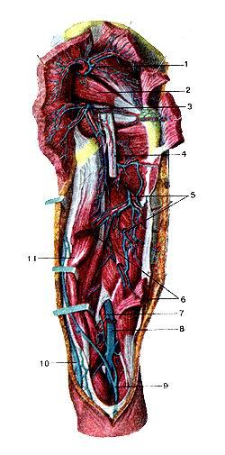 <br>Рис. 331. Глубокие вены бедра, правою. Вид сзади. Большая и средняя ягодичные<br>мышцы перерезаны и отвернуты в стороны,<br>длинная головка двуглавой мышцы частично удалена. 1-верхняя ягодичная вена;<br>2-грушевидная мышца; 3-нижняя ягодичная вена; 4-седалищный нерв (отрезан и удален);<br>5-пробода-юшие вены; б-ллинная головка двуглавой мышцы бедра; 7-под-коленная<br>артерия; 8-подколенная вена; 9-маная подкожная вена ноги; 10-большая подкожная<br>вена ноги: 11-полусухожильная мышца (оттянута в медиальную сторону).<br>Fig. 331. Глубокие вены бедра, правого. Вид сзати. Большая и средняя ягодичные<br>мышцы перерезаны и отвернугы в стороны,<br>спинная головка двуглавой мышцы частично удалена. 1-v. glutea superior; 2-m.<br>pirilbrmis; 3-v. glutea inferior; 4-n. ischiadi-cus; 5-vv. perforantes; 6-m.<br>biceps lemons (caput longum); 1-я. poplitea; 8-v. poplitea; 9-v. saphena parva;<br>10-v. saphena magna; I l-m. semitendinosus.<br>Fig. 331. Deep veins of right femur. Posterior aspect. Gluteus max-imus and<br>gluteus rnedius are cut and unfolded. Long head of biceps<br>muscle of lemur is partially removed.<br>I-gluteus superior; 2-pirilormis; 3-gluteus interior; 4-sciatic nerve (removed);<br>5-perforating veins; 6-long head of biceps lemons; 7-popli-teus artery; 8-politeal<br>vein; 9-small sapheneus vein; 10-great sapheneus vein; 11-semitendinosus (unfolded<br>to the medial).