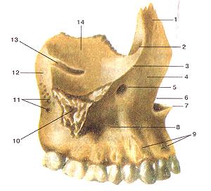 Верхняя челюсть (верхнечюстная кость-maxilla),правая. Вид сбоку. 1-лобный отросток; 2-передний слезный гребень; 3-подглазнич-ный край; 4-передняя поверхность; 5-подглазничное отверстие; 6-носовая вырезка; 7-передняя носовая ость; 8-тело верхней челюсти; 9-альвеолярные возвышения; 10-скуловой отросток; 11-альвеолярные отверстия; 12-бугор верхней челюсти; 13-под-глазничная борозда; 14-глазничная поверхность.