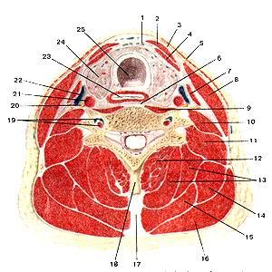 <br>Рис. 114. Мышцы и фасции шеи на поперечном разрезе. 1-предтрахеальная пластинка<br>шейной фасции (средняя фасция шеи); 2-фудино-иодъязычная мышца; 3-поверхностная<br>пластинка шейной фаспии (поверхностная фасция шеи); 4-грудино-щитовидная мышца;<br>5-подкожная мышца шеи; 6-предпозвоноч-ная пластинка шейной фасции (предпозвоночная<br>фасция); 7-лопаточно-нодъязычная мышца; 8-грудиио-ключично-сосце-видная мышца;<br>9-длинная мышца шеи; 10-передняя лестничная мышца; 11-средняя и задняя лестничные<br>мышцы; 12-полуостис-тая мышца шеи; 13-полуостистая мышца головы; 14-мышца, поднимающая<br>лопатку; 15-ременные мышцы головы к шеи; 16-трапециевидная мышца; 17-выйная<br>связка; 18-осгистый отросток шейного позвонка; 19-позвоночные артерия и вена;<br>20-блуждаюший нерв; 21-общая сонная артерия; 22-внутреняя яремная вена; 23-пищевод;<br>24-щитовидная железа; 25-грахея.<br>Fig. 114. Мышцы и фасции шеи на поперечном разрезе. I -lamina pretrachealis<br>fasciae cervicalis; 2-m.sternohyoideus; 3-lam-ina superticialis fasciae cervicalis;<br>4-m.sternolhyroideus; 5-pla(isma; 6-lamina prevertebralis fasciae cervicalis;<br>7-m. omohyoideus; 8-m. stern-ocleidomastoideus; 9-m. longus colli; 10-m. scalenus<br>anterior; 11-m. scalenus medius el m.posterior; 12-m. semispinalis cervicis;<br>13-m. semispinalis capitis; 14-m. levator scapulae; 15-m. splenius capitis et<br>m. splenius cervicis; 16-m. trapezius; 17-lig. nuchae; 18-processus spinosus<br>vertebrae cervicalis; 19-arteria vertebralis et vena vertebralis; 20-n. vagus;<br>21-arteria carotis communis; 22-vena jugularis interna; 23-esophagus; 24-glandula<br>thyroidea; 25-trachea.<br>Fig. 114. Museles and faseias of neck (horizontal section). 1-pretraeheal layer<br>(fascia cerviealis); 2-sternohyoid; 3-superfacial layer (fascia cerviealis)<br>investing layer; 4-sternotliyroid; 5-platysma; 6-prevertebral layer (fascia<br>cerviealis); 7-omoliyoid; 8-sternocleidomas-toid; 9-longuscolli; 10-scalenus<br>anterior; I l-scalcni mcdiusand po