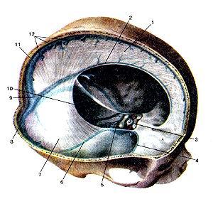 Рис. 356. Твердая оболочка головного<br>мозга (dura mater encephali). Синусы твердой оболочки.<br>1-серп большого мозга; 2-нижний сагиттальный синус; 3-перед-ний межпешеристый<br>синус; 4-клиновидно-теменной синус; 5-задний межпешеристый синус; 6-верхний<br>каменистый синус; 7-намет мозжечка; 8-поперечный синус; 9-синусный сток; 10-сигмовидный<br>синус; 11-верхний сагиттальный синус; 12-устья верхних мозговых вен.<br>Fig. 356. Твердая оболочка головного мозга.<br>Синусы твердой оболочки.<br>1-falx cerebri; 2-sinus saggitalis inferior; 3-sinus intercavernosus anterior;<br>4-sinus spbenoparietalis; S-sinus intercavemsus posterior; 6-sintx, petrosus<br>superior; 7-(entorium cerebelli; 8-sinus transversus; 9-con-fuens sinuum; 10-sinus<br>siftmoidus; 11-sinus sa^gitalis superior foramina vv. superiores cerebri.<br>Fig. 356. Cranial dura mater. Dural venous sinuses. 1-cerebral falx; 2-inferior<br>sagittal sinus; 3-anterior intercavernous sinus; 4-sphenoparictal sinus; 5-posterior<br>intercavernous sinus; 6-supe-rior petrous sinus; 7-tentorium of cerebellum;<br>8-transverse sinus; 9-confluence of sinuses; 10-sigmoid sinus; 11-superior sagittal<br>sinus; 12-openings of superior cerebral veins.