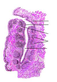 Небная миндалина (tonsilla palatina)