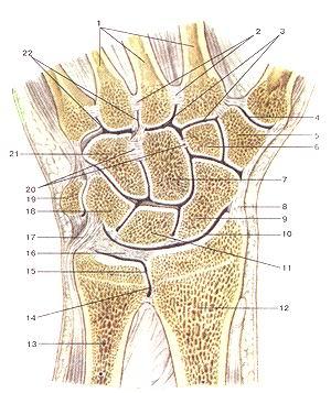 <br><br>Рис. 84. Луче-запястый сустав (articulanio radiocarpea); суставы и<br>связки кисти, правой; Разрез во фронтальной плоскости. I-пястные кости; 2-межкостные<br>межпястные связки; 3-запяст-но-пястныс суставы; 4-запястно-пястный сустав 1<br>пальца кисти; 5-многоугольная кость; 6-трапециевидная кость; 7-головчатая кость;<br>8-лучевая коллатеральная связка запястья; 9- ладьевидная кость; 10-луче-запястный<br>сустав; 11-полулунная кость; 12-луче-вая кость; 13-локтевая кость; 14-мешкообразное<br>углубление дис-тального луче-локтевого сустава; 15-дистальный луче-локтевой<br>сустав; 16-внутрисуставиой диск луче-запястного сустава; 17-локтевая коллатеральная<br>связка запястья; 18-трехграннан кость; 19-гороховидная кость; 20-межкостные<br>межзапястные свяжи; 21-крючковидная кость; 22-межпястные суставы.<br>Fig. 84. Articulatio radiocarpea; суставы и связки кистиб правой.<br>Разрез во фронтальной плоскости.<br>1-ossa metacarpea; 2-ligamenta interossea intermetacarpea; 3-articu-lationes<br>сафопшасафеае; 4-articulatio carpometacarpea pollicis; 5-os irape/.ium; 6-os<br>trapezoium; 7-os capitatum; 8-ligamentum collat-erale саф1 radiale; 9-os scaphoideum;<br>10-articulatio radiocaфeunl; 11-os lunatum; 12-radius;13-ulna; 14-recessussacciformis;<br>15-articu-latio гадюсафеит distalis; 16-discus articularis; 17-Ugamentum col-laterale<br>carpi ulnare; 18-os triquelrum; 19-os pisiformc; 20-ligamenta т!егсафеа interossea;<br>21-os hamatum; 22-ligamenta ймегсафеа.<br>Fig. 84. Кад4осафа1 joint, ligaments and joi nls pf right wrist.<br>Frontal plane.<br>1-те1асафа1 bones; 2-interosseous те!асафа1 ligaments; 3-car-роте!асафа1 joints;<br>4-сафоте1асафа1 joint of thumb; 5-tropezium; 6-trapezoid; 7-capitatc; 8-radial<br>сафа! collateral ligament; 9-scaphoid; 10-гаШосафа1 joint; ll-lunate; 12-radius;<br>13-ulna; 14-sacciform recess of distal radioulnar joint; 15-distal radioulnar<br>joint; 17-и1пагсафа1 collateral ligament; 18-triquetrum; 19-pisiform; 20-interosseous<br>inter-сафа! ligam
