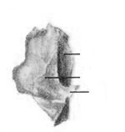 Слезная кость (os lacrimale)