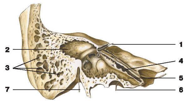 Рис.67. Височная кость (вертикальный разрез):1 — зонд введен в лицевой канал; 2 — сосцевидная пещера; 3 — сосцевидные ячейки;4 — полуканал мышцы, напрягающей барабанную перепонку; 5 — полуканал слуховой трубы;6 — зонд введен в сонный канал; 7 — зонд введен в шилососцевидное отверстие