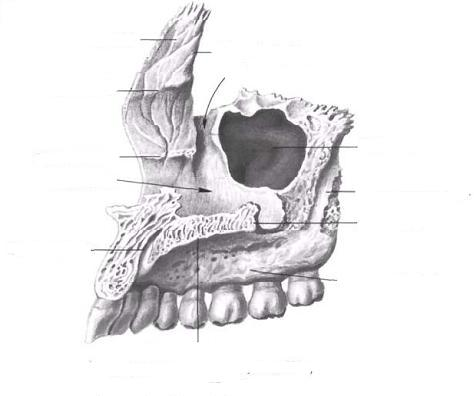 Верхняя челюсть (верхнечелюстная кость-maxilla), правая