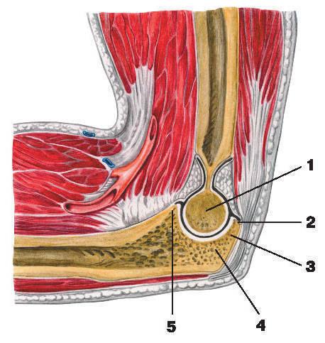 Рис.33. Локтевой сустав (вертикальный разрез):1 — блок плечевой кости; 2 — полость сустава; 3 — локтевой отросток; 4 — блоковидная вырезка локтевой кости;5 — венечный отросток локтевой кости