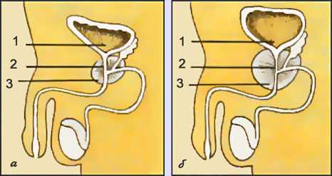 Рис. Аденома предстательной железы. Схематическое изображение органов нижнего отдела мочевыводящей системы мужчины (продольный разрез): а - в норме, б - при аденоме предстательной железы (1 - мочевой пузырь; 2 - простатическая часть мочеиспускательного канала; 3 - предстательная железа)