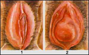 Рис. Бартолинит. Ложный (1) и истинный (2) абсцессы бартолиновой железы