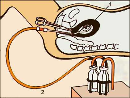 Рис. Аборт. Схематическое изображение вакуум - аспирации: 1- зародыш; 2 - аппарат вакуум - аспирации.