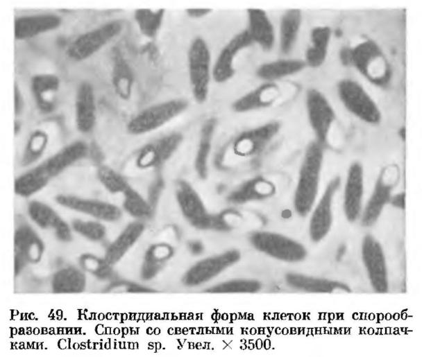 современном споры бактерий фото нас можно
