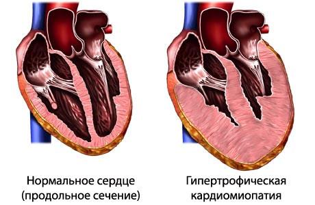 Кардиомиопатия гипертрофическая